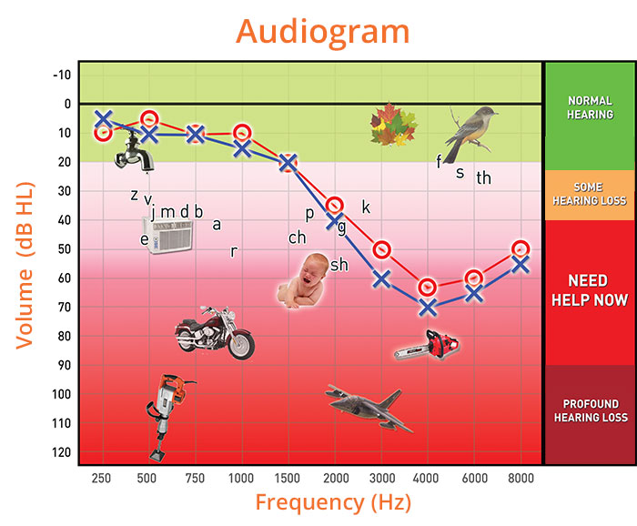 reading-audiogram